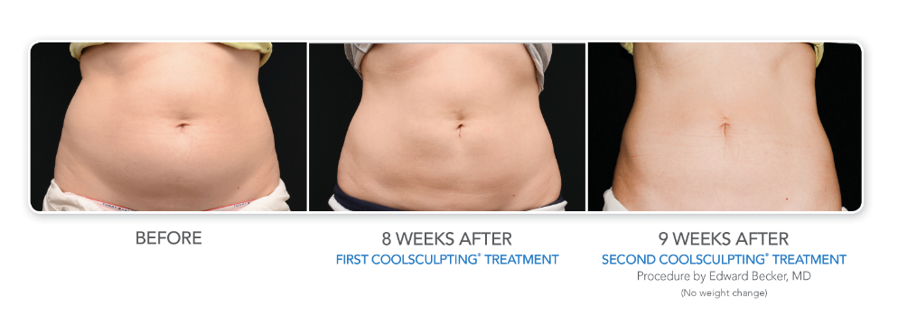 CoolSculpting Female Pic