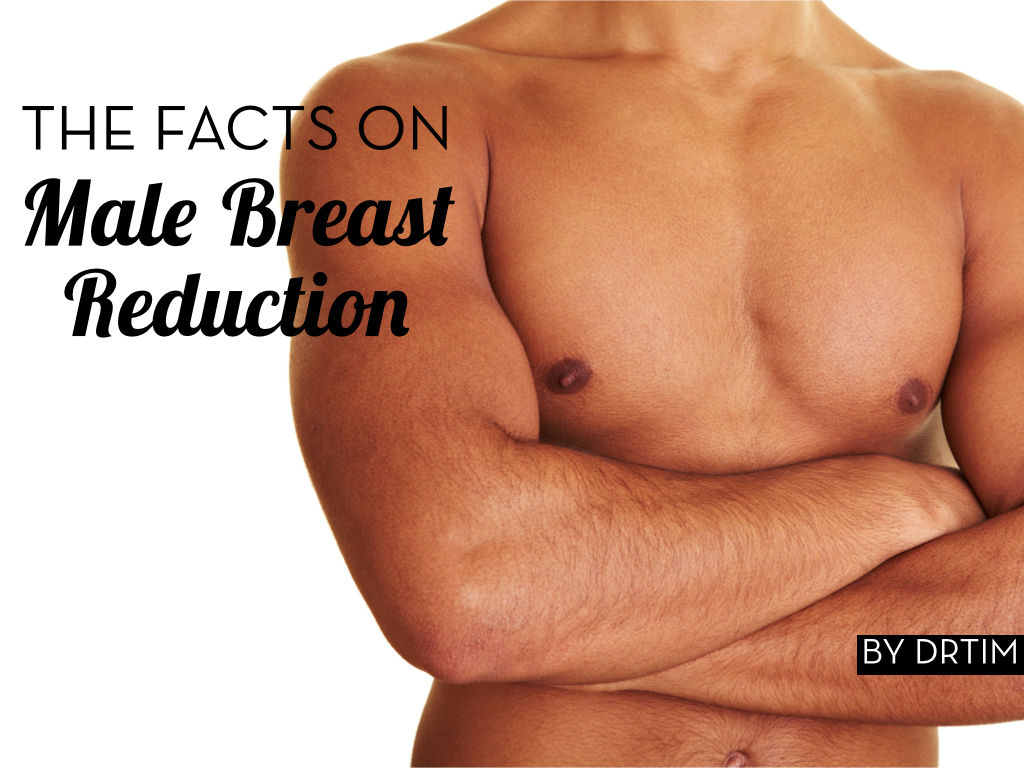 Male Breast Reduction.jpg.002