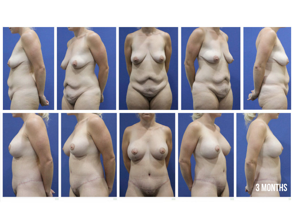 AUGMENTATION MASTOPEXY ABDOMINOPLASTY IMAGE.001